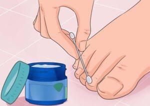 9 remedios naturales para tratar el hongo en las uñas