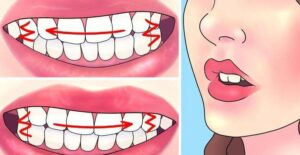 Esto es lo que le sucede a tu cuerpo cuando rechinas los dientes