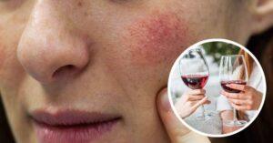 ¿Te sonrojas cuando bebes alcohol? Lee esto por tu salud