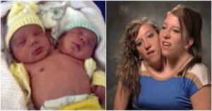 Así se ven 30 años después las gemelas con la cabeza unida: Abby y Brittany Hensel