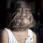 La niña más peluda del mundo ha decidido afeitarse toda tras conocer el amor. Así luce: