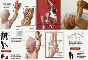 Por qué NUNCA debes levantar a los bebés por los brazos